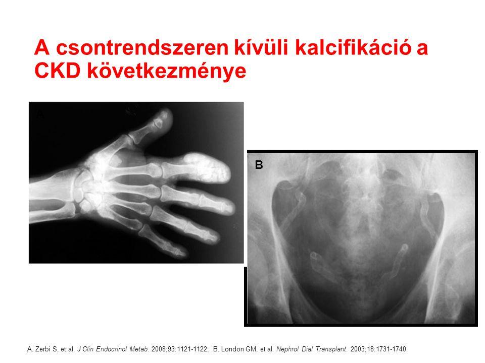 A csontrendszeren kívüli kalcifikáció a CKD következménye A. Zerbi S, et al. J Clin Endocrinol Metab. 2008;93:1121-1122; B. London GM, et al. Nephrol