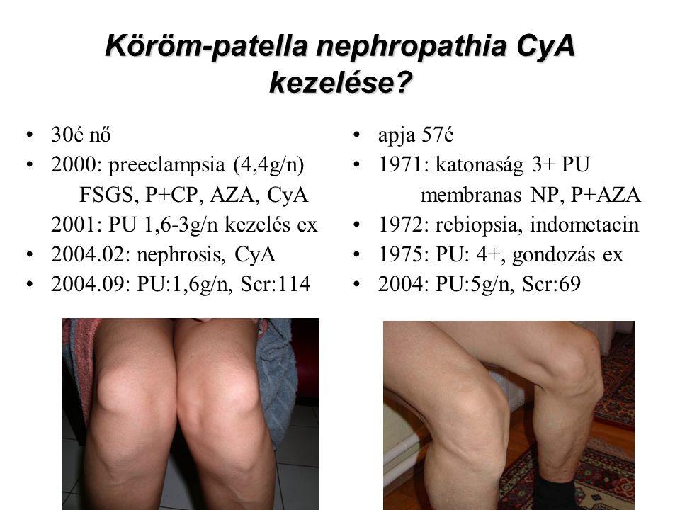 Köröm-patella nephropathia CyA kezelése? 30é nő 2000: preeclampsia (4,4g/n) FSGS, P+CP, AZA, CyA 2001: PU 1,6-3g/n kezelés ex 2004.02: nephrosis, CyA