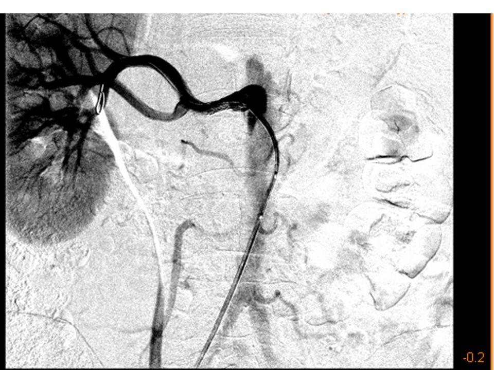 Thrombotikus események gyakorisága membranosus nephropathiában vesevéna thrombosis35 % klinika tünetekkel 5 % avtgi mélyvénás thrombosis20 % pulmonalis embolia20 % klinikai tünetekkel 8 % artérias thrombosisok1-2 %