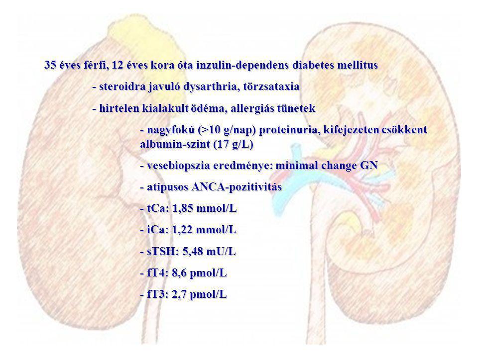 35 éves férfi, 12 éves kora óta inzulin-dependens diabetes mellitus - steroidra javuló dysarthria, törzsataxia - hirtelen kialakult ödéma, allergiás tünetek - nagyfokú (>10 g/nap) proteinuria, kifejezeten csökkent albumin-szint (17 g/L) - vesebiopszia eredménye: minimal change GN - atípusos ANCA-pozitivitás - tCa: 1,85 mmol/L - iCa: 1,22 mmol/L - sTSH: 5,48 mU/L - fT4: 8,6 pmol/L - fT3: 2,7 pmol/L