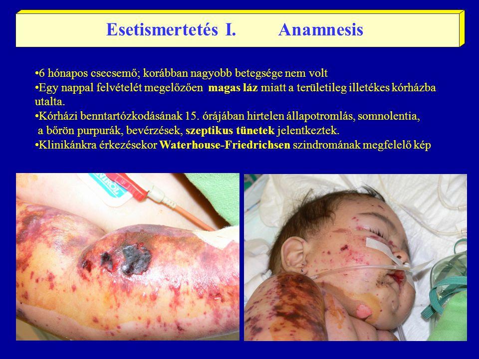 Esetismertetés I. Anamnesis 6 hónapos csecsemő; korábban nagyobb betegsége nem volt Egy nappal felvételét megelőzően magas láz miatt a területileg ill