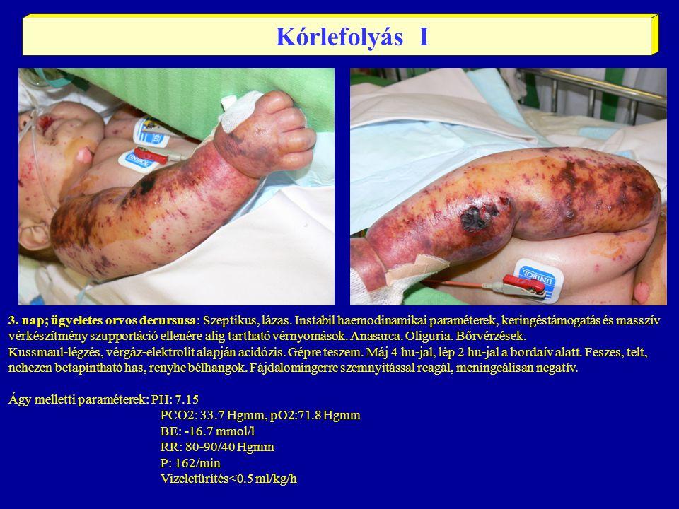 3. nap; ügyeletes orvos decursusa: Szeptikus, lázas. Instabil haemodinamikai paraméterek, keringéstámogatás és masszív vérkészítmény szupportáció elle