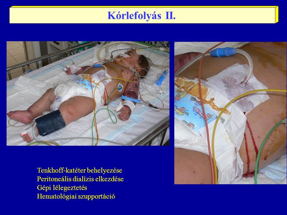 Tenkhoff-katéter behelyezése Peritoneális dialízis elkezdése Gépi lélegeztetés Hematológiai szupportáció Kórlefolyás II.