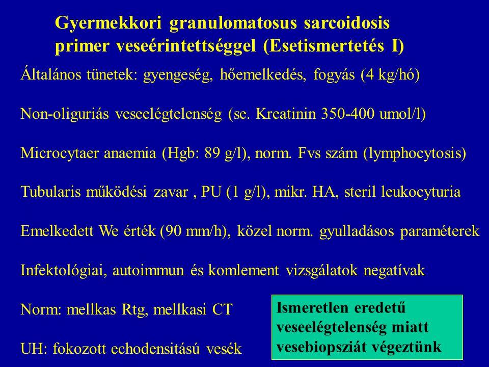 Gyermekkori granulomatosus sarcoidosis primer veseérintettséggel (Esetismertetés I) Általános tünetek: gyengeség, hőemelkedés, fogyás (4 kg/hó) Non-ol