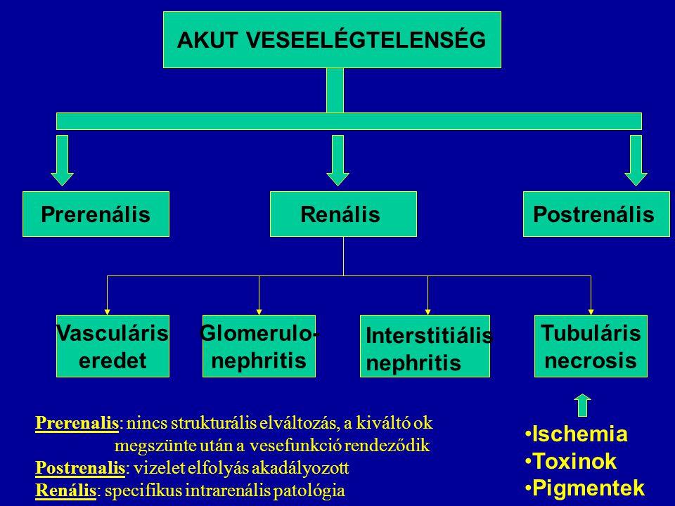 AKUT VESEELÉGTELENSÉG PrerenálisRenálisPostrenális Vasculáris eredet Glomerulo- nephritis Tubuláris necrosis Interstitiális nephritis Ischemia Toxinok Pigmentek Prerenalis: nincs strukturális elváltozás, a kiváltó ok megszünte után a vesefunkció rendeződik Postrenalis: vizelet elfolyás akadályozott Renális: specifikus intrarenális patológia