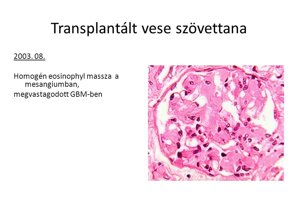 Transplantált vese szövettana 2003. 08. Homogén eosinophyl massza a mesangiumban, megvastagodott GBM-ben