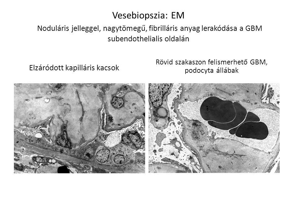 Vesebiopszia: EM Noduláris jelleggel, nagytömegű, fibrilláris anyag lerakódása a GBM subendothelialis oldalán Rövid szakaszon felismerhető GBM, podocy