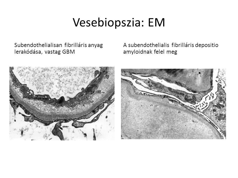 Vesebiopszia: EM Subendothelialisan fibrilláris anyag lerakódása, vastag GBM A subendothelialis fibrilláris depositio amyloidnak felel meg