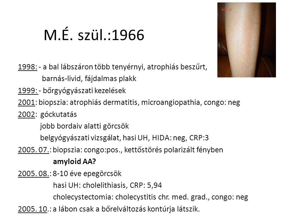 M.É. szül.:1966 1998: - a bal lábszáron több tenyérnyi, atrophiás beszűrt, barnás-livid, fájdalmas plakk 1999: - bőrgyógyászati kezelések 2001: biopsz