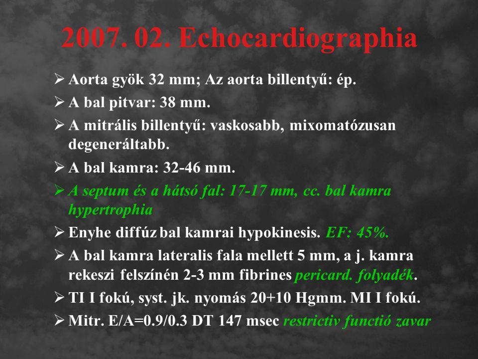 2007. 02. Echocardiographia  Aorta gyök 32 mm; Az aorta billentyű: ép.  A bal pitvar: 38 mm.  A mitrális billentyű: vaskosabb, mixomatózusan degene