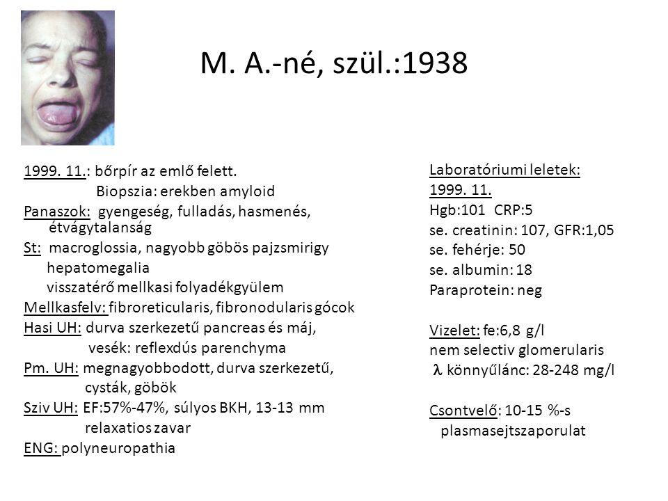 M. A.-né, szül.:1938 1999. 11.: bőrpír az emlő felett. Biopszia: erekben amyloid Panaszok: gyengeség, fulladás, hasmenés, étvágytalanság St: macroglos