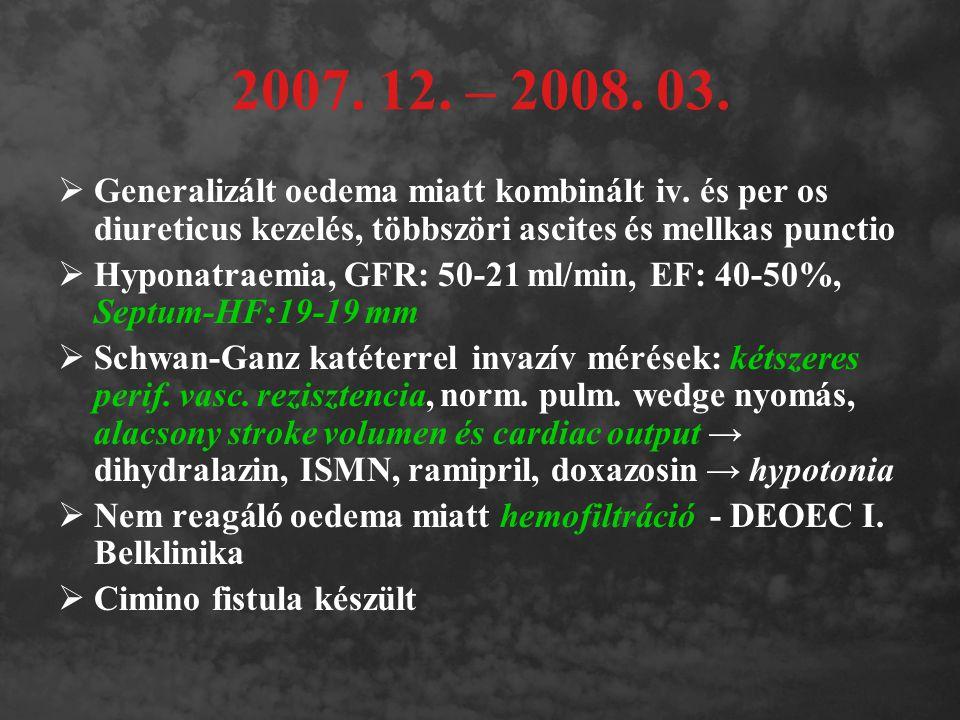 2007. 12. – 2008. 03.  Generalizált oedema miatt kombinált iv. és per os diureticus kezelés, többszöri ascites és mellkas punctio  Hyponatraemia, GF