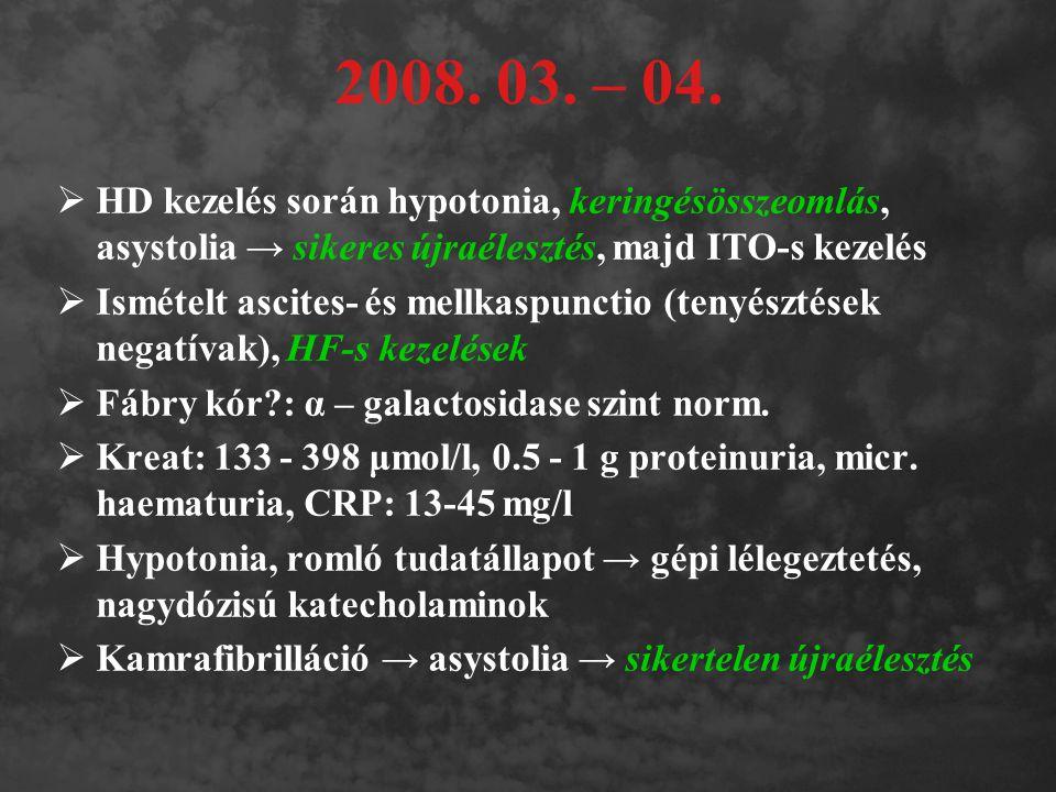2008. 03. – 04.  HD kezelés során hypotonia, keringésösszeomlás, asystolia → sikeres újraélesztés, majd ITO-s kezelés  Ismételt ascites- és mellkasp