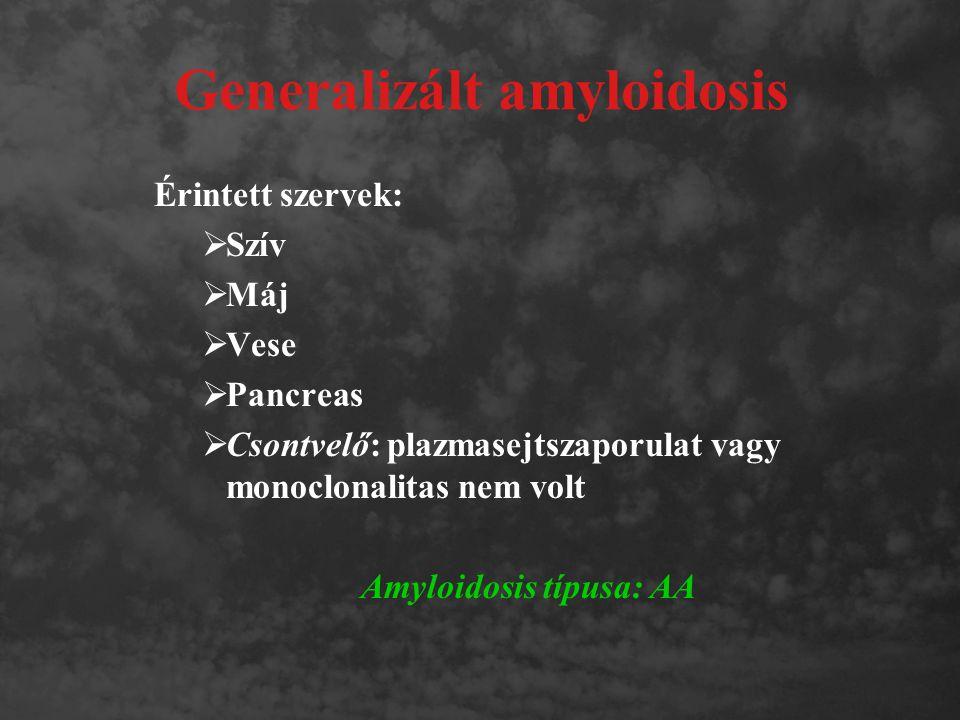 Generalizált amyloidosis Érintett szervek:  Szív  Máj  Vese  Pancreas  Csontvelő: plazmasejtszaporulat vagy monoclonalitas nem volt Amyloidosis t