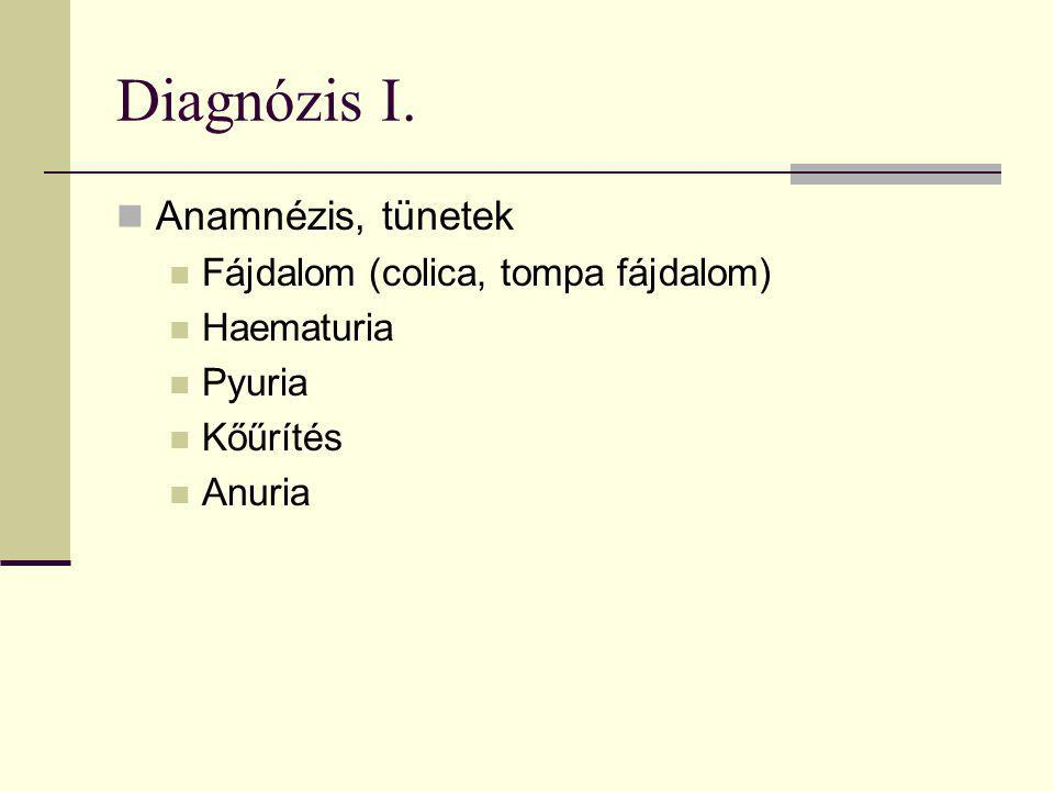 Diagnózis I. Anamnézis, tünetek Fájdalom (colica, tompa fájdalom) Haematuria Pyuria Kőűrítés Anuria