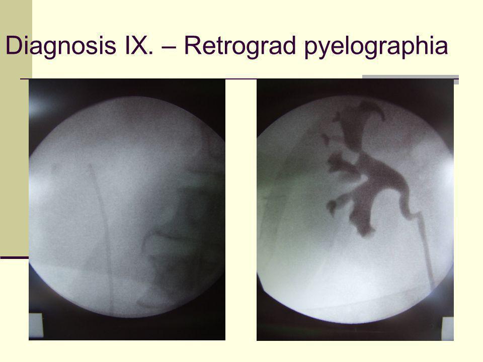 Diagnosis IX. – Retrograd pyelographia