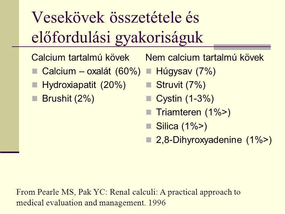 Vesekövek összetétele és előfordulási gyakoriságuk Calcium tartalmú kövek Calcium – oxalát (60%) Hydroxiapatit (20%) Brushit (2%) Nem calcium tartalmú