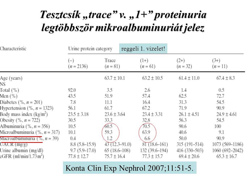 """Tesztcsík """"trace"""" v. """"1+"""" proteinuria legtöbbször mikroalbuminuriát jelez Konta Clin Exp Nephrol 2007;11:51-5. reggeli 1. vizelet!"""