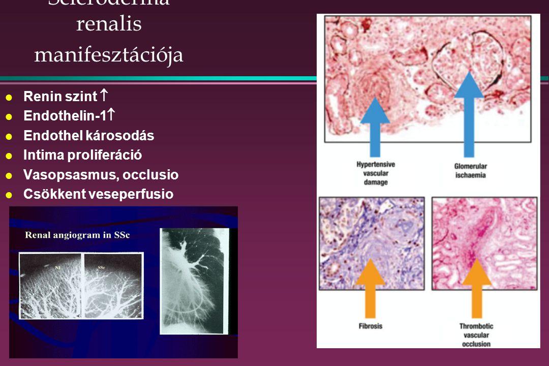 Scleroderma renalis manifesztációja l Renin szint  l Endothelin-1  l Endothel károsodás l Intima proliferáció l Vasopsasmus, occlusio l Csökkent veseperfusio