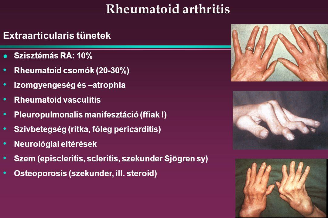 Rheumatoid arthritis Extraarticularis tünetek l Szisztémás RA: 10% Rheumatoid csomók (20-30%) Izomgyengeség és –atrophia Rheumatoid vasculitis Pleuropulmonalis manifesztáció (ffiak !) Szivbetegség (ritka, fôleg pericarditis) Neurológiai eltérések Szem (episcleritis, scleritis, szekunder Sjögren sy) Osteoporosis (szekunder, ill.