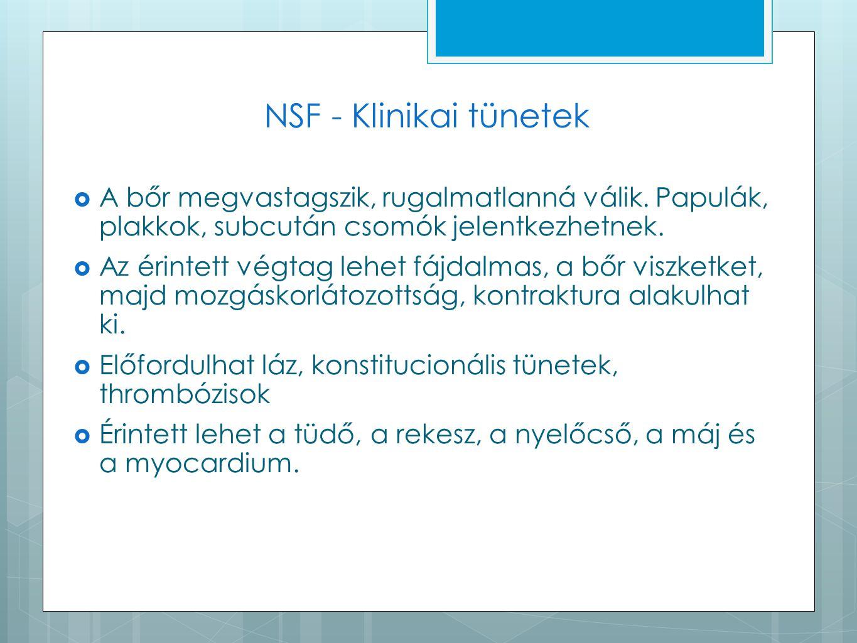 NSF - Klinikai tünetek  A bőr megvastagszik, rugalmatlanná válik. Papulák, plakkok, subcután csomók jelentkezhetnek.  Az érintett végtag lehet fájda