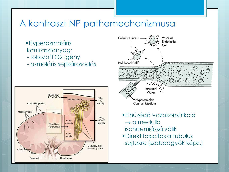 A kontraszt NP pathomechanizmusa Elhúzódó vazokonstrikció  a medulla ischaemiássá válik Direkt toxicitás a tubulus sejtekre (szabadgyök képz.) Hyperozmoláris kontrasztanyag: - fokozott O2 igény - ozmoláris sejtkárosodás