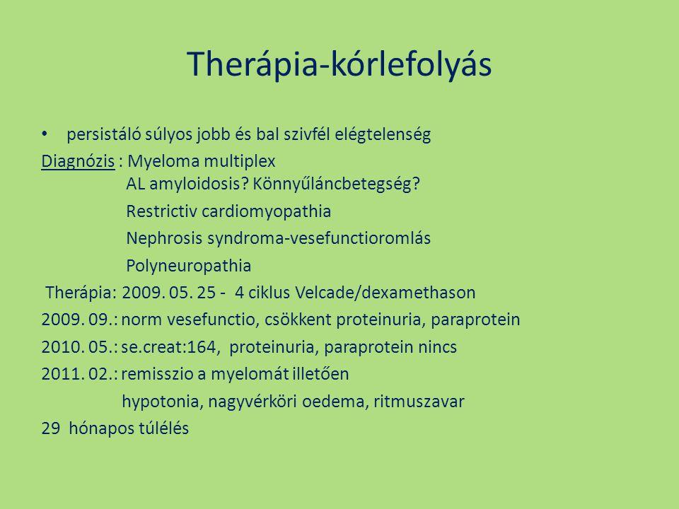 Therápia-kórlefolyás persistáló súlyos jobb és bal szivfél elégtelenség Diagnózis : Myeloma multiplex AL amyloidosis? Könnyűláncbetegség? Restrictiv c
