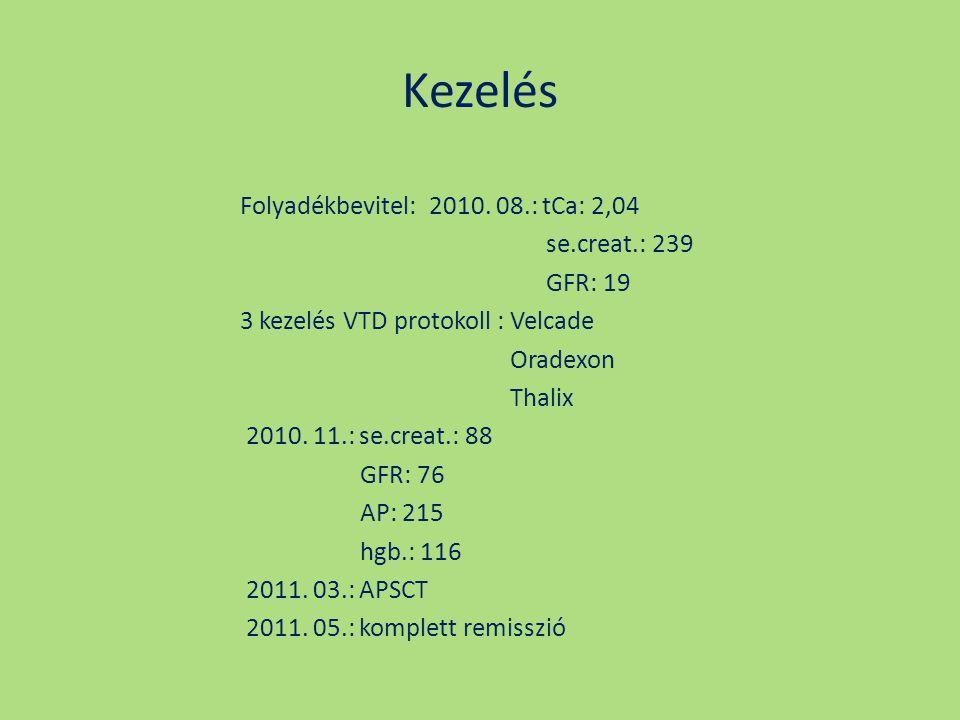 Kezelés Folyadékbevitel: 2010. 08.: tCa: 2,04 se.creat.: 239 GFR: 19 3 kezelés VTD protokoll : Velcade Oradexon Thalix 2010. 11.: se.creat.: 88 GFR: 7