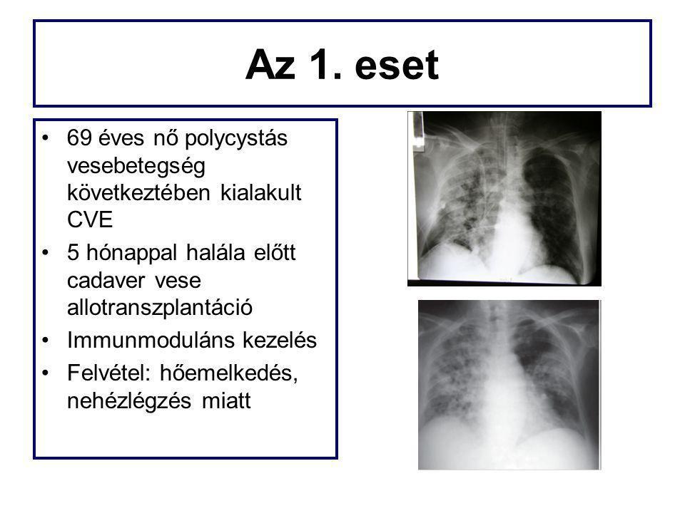 47 H1N1-ben szenvedő beteg 4 akadémiai központ 30 betegnek lett ARDS-e Kezelés: –13 betegnél NIV indult→ 11 invazív lett –Invazív: Alacsony TV (6 ml/tskg) PSV APRV –Senki nem részesült: ECMO, prone, HFOV 27% a mortalitás Abból a 9 betegből, akit először más kórházban kezeltek és a súlyosbodás miatt be lett utalva, 8 halt meg.