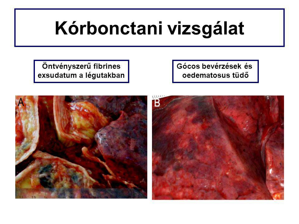 Kórbonctani vizsgálat Öntvényszerű fibrines exsudatum a légutakban Gócos bevérzések és oedematosus tüdő