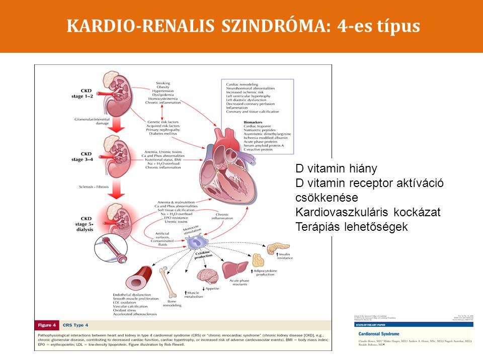 KARDIO-RENALIS SZINDRÓMA: 4-es típus D vitamin hiány D vitamin receptor aktíváció csökkenése Kardiovaszkuláris kockázat Terápiás lehetőségek