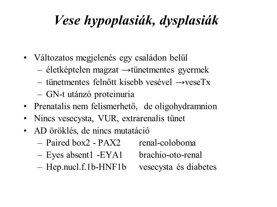 Vese hypoplasiák, dysplasiák Változatos megjelenés egy családon belül –életképtelen magzat →tünetmentes gyermek –tünetmentes felnőtt kisebb vesével →veseTx –GN-t utánzó proteinuria Prenatalis nem felismerhető, de oligohydramnion Nincs vesecysta, VUR, extrarenalis tünet AD öröklés, de nincs mutatáció –Paired box2 - PAX2renal-coloboma –Eyes absent1 -EYA1brachio-oto-renal –Hep.nucl.f.1b-HNF1bvesecysta és diabetes