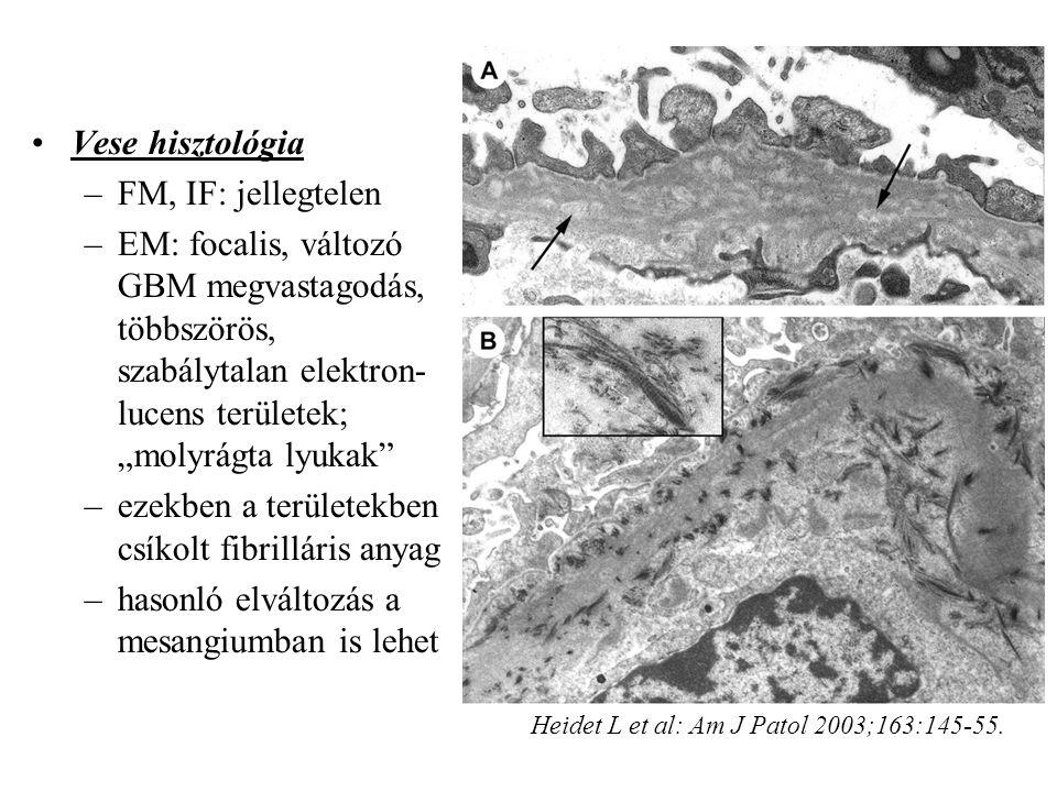 """Vese hisztológia –FM, IF: jellegtelen –EM: focalis, változó GBM megvastagodás, többszörös, szabálytalan elektron- lucens területek; """"molyrágta lyukak –ezekben a területekben csíkolt fibrilláris anyag –hasonló elváltozás a mesangiumban is lehet Heidet L et al: Am J Patol 2003;163:145-55."""