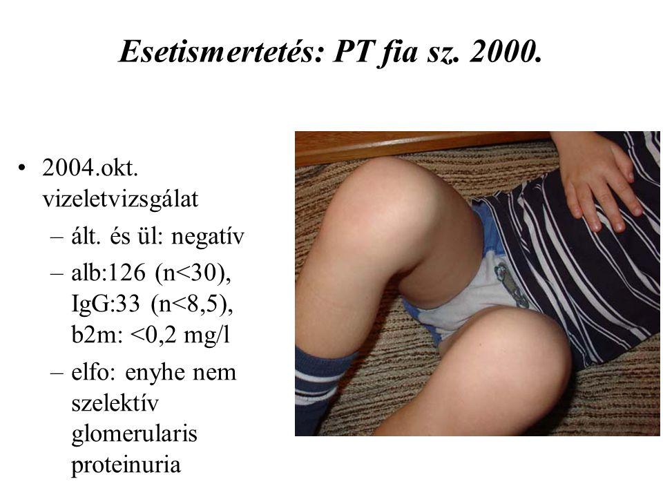 Esetismertetés: PT fia sz. 2000. 2004.okt. vizeletvizsgálat –ált. és ül: negatív –alb:126 (n<30), IgG:33 (n<8,5), b2m: <0,2 mg/l –elfo: enyhe nem szel