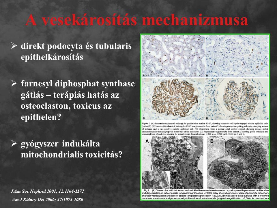 A vesekárosítás mechanizmusa  direkt podocyta és tubularis epithelkárosítás  farnesyl diphosphat synthase gátlás – terápiás hatás az osteoclaston, toxicus az epithelen.