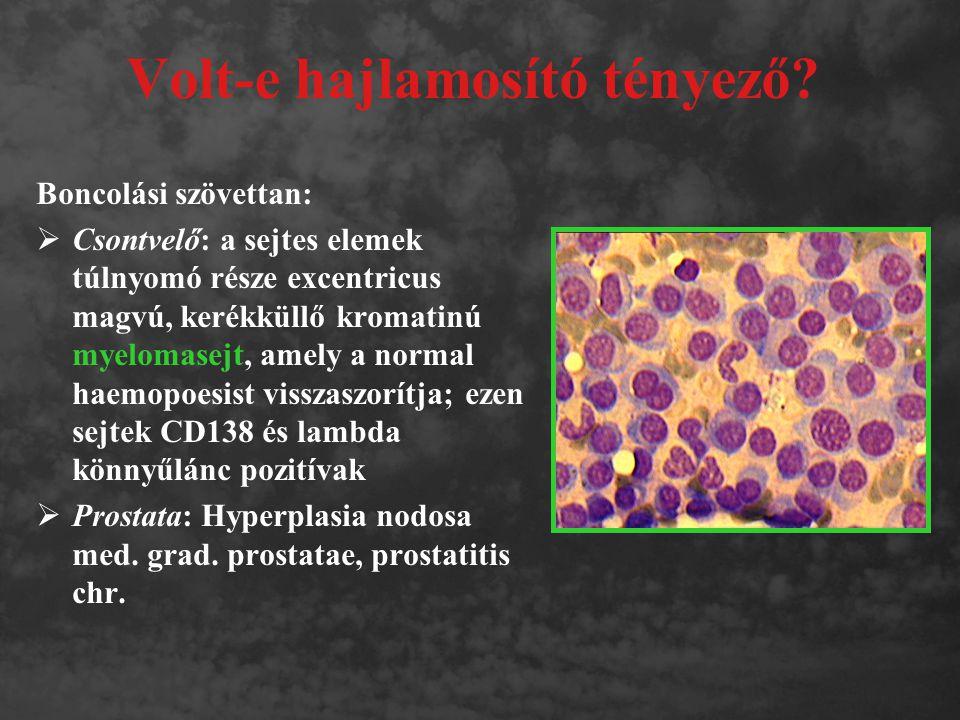 Volt-e hajlamosító tényező? Boncolási szövettan:  Csontvelő: a sejtes elemek túlnyomó része excentricus magvú, kerékküllő kromatinú myelomasejt, amel