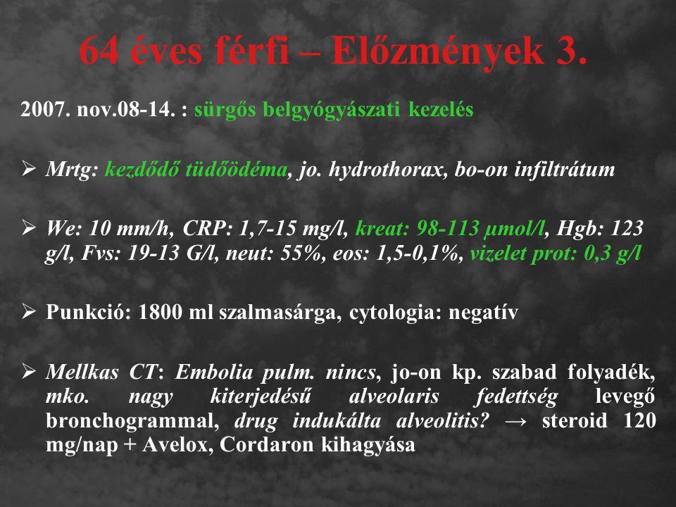64 éves férfi – Előzmények 3. 2007. nov.08-14. : sürgős belgyógyászati kezelés  Mrtg: kezdődő tüdőödéma, jo. hydrothorax, bo-on infiltrátum  We: 10