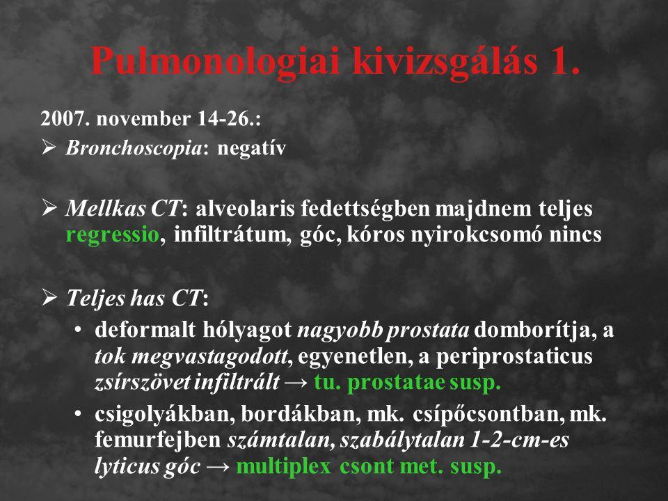 Pulmonologiai kivizsgálás 1. 2007. november 14-26.:  Bronchoscopia: negatív  Mellkas CT: alveolaris fedettségben majdnem teljes regressio, infiltrát