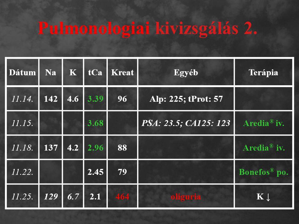 Pulmonologiai kivizsgálás 2. DátumNaKtCaKreatEgyébTerápia 11.14.1424.63.3996Alp: 225; tProt: 57 11.15.3.68PSA: 23.5; CA125: 123Aredia ® iv. 11.18.1374