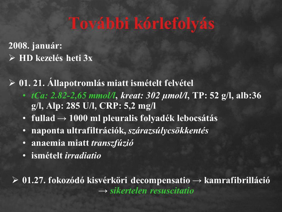 """Bisphosphonátok metabolizmusa AZONOSSÁGOK  nem metabolizálódnak  nem kerülnek kapcsolatba a P450 cytokróm rendszerrel  változatlanul ürülnek a glomerularis filtrációval, tubularis secretioval  beszűkült vesefunkció csökkenti a kiválasztást → emelkedett szérum- (és csont) szint → fokozott toxicitás KÜLÖNBSÉGEK  Fehérjéhez kötődés ibandronate 87% zolendronate 56% pamidronate 54%  """"Vese-féléletidő zolendronate 150-200 nap ibandronate 24 nap"""