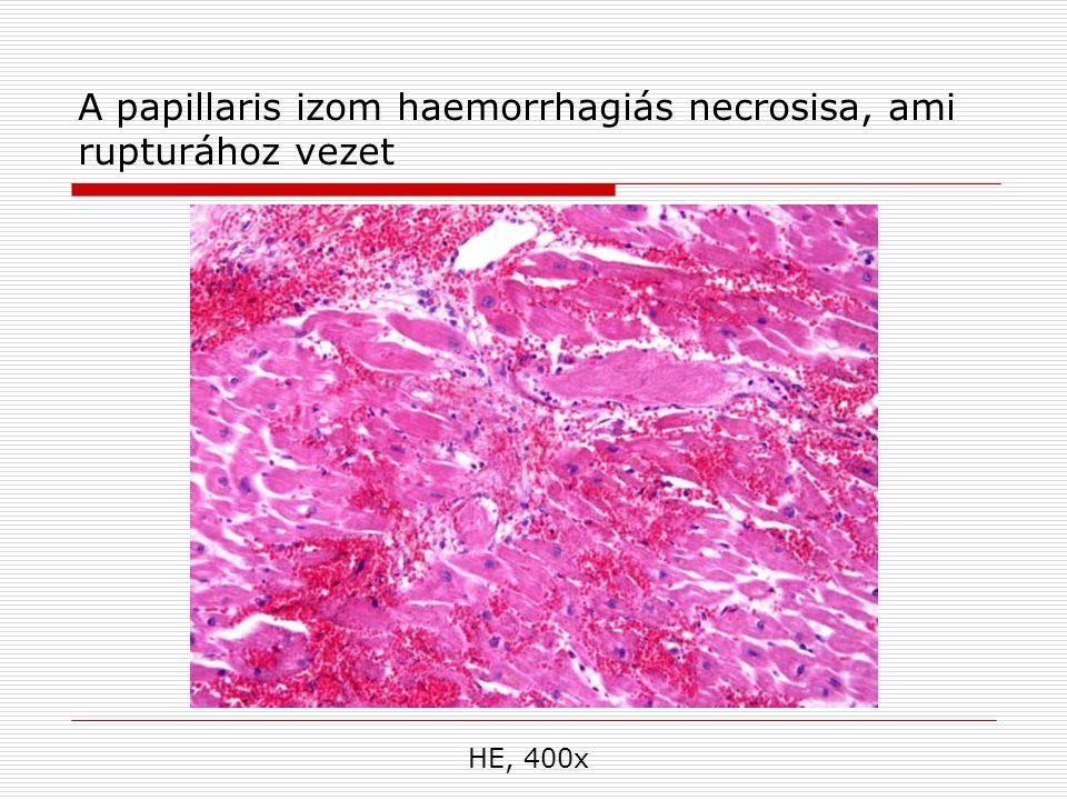 A papillaris izom haemorrhagiás necrosisa, ami rupturához vezet HE, 400x