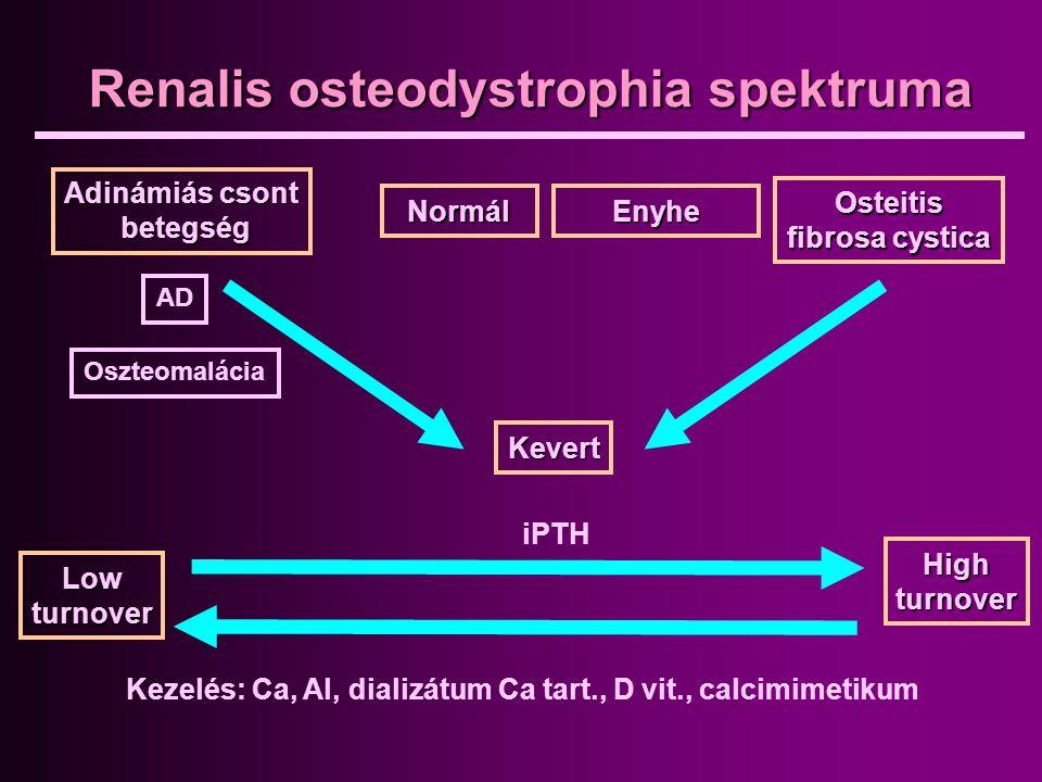 Renalis osteodystrophia spektruma Normál iPTH Osteitis fibrosa cystica Adinámiás csont betegség betegség AD Oszteomalácia Enyhe Kevert Highturnover Lo