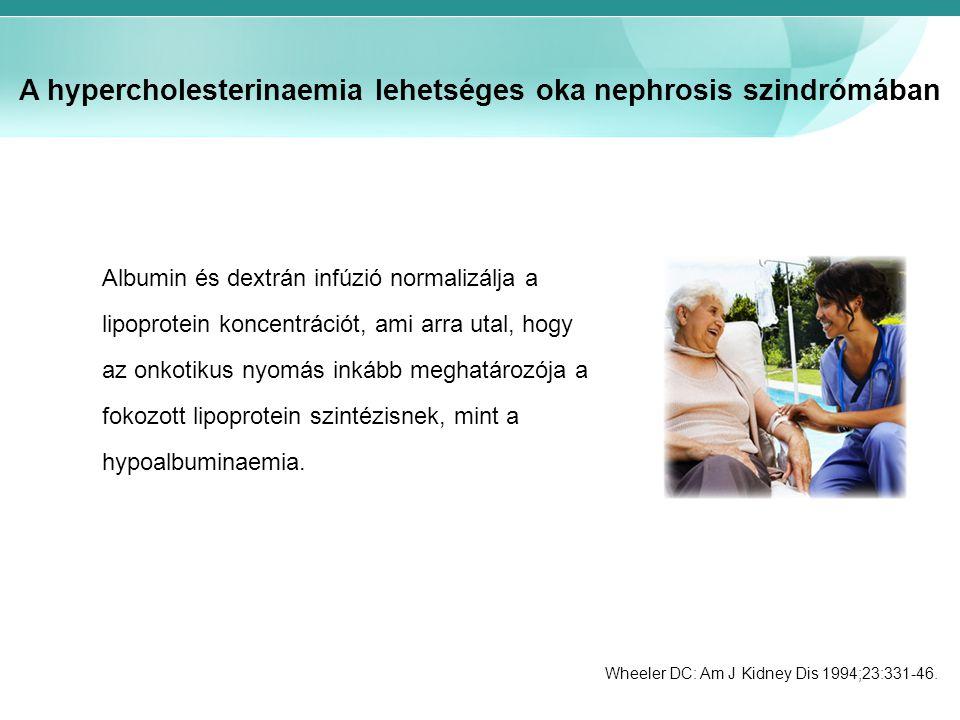 A hypercholesterinaemia lehetséges oka nephrosis szindrómában Albumin és dextrán infúzió normalizálja a lipoprotein koncentrációt, ami arra utal, hogy az onkotikus nyomás inkább meghatározója a fokozott lipoprotein szintézisnek, mint a hypoalbuminaemia.