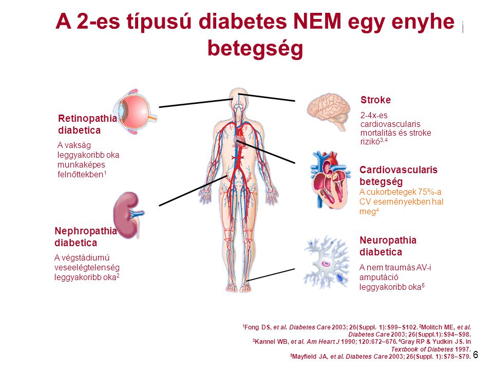 6 Retinopathia diabetica A vakság leggyakoribb oka munkaképes felnőttekben 1 Nephropathia diabetica A végstádiumú veseelégtelenség leggyakoribb oka 2