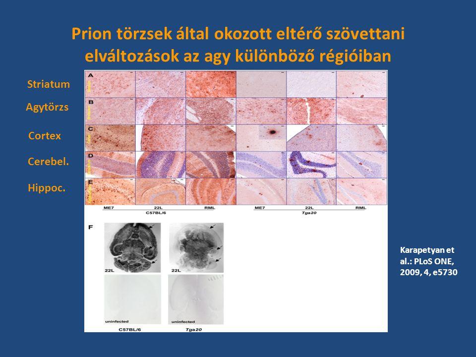 Prion törzsek által okozott eltérő szövettani elváltozások az agy különböző régióiban Striatum Agytörzs Cortex Cerebel.