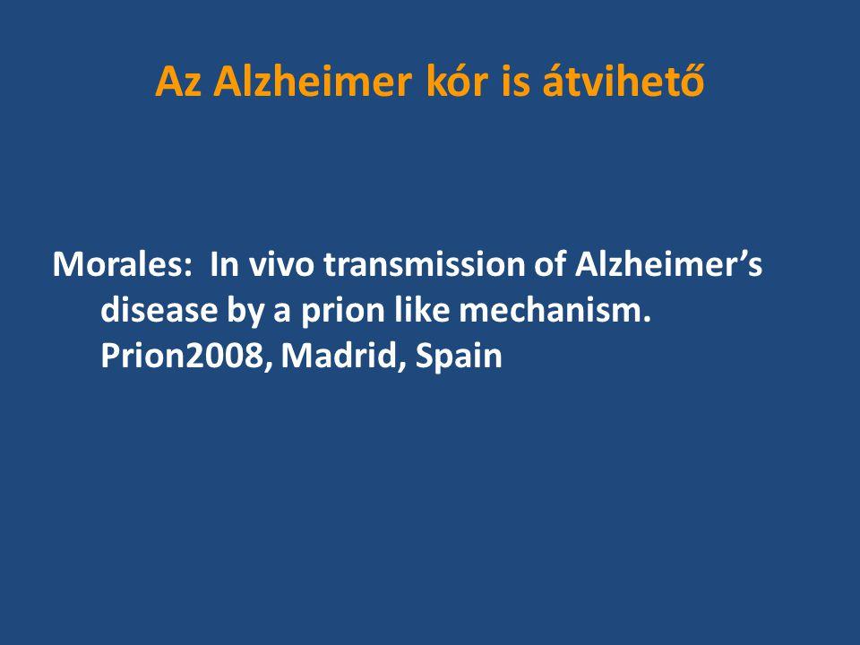 Az Alzheimer kór is átvihető Morales: In vivo transmission of Alzheimer's disease by a prion like mechanism.