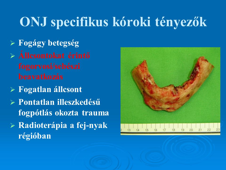 ONJ specifikus kóroki tényezők   Fogágy betegség   Állcsontokat érintő fogorvosi/sebészi beavatkozás   Fogatlan állcsont   Pontatlan illeszked