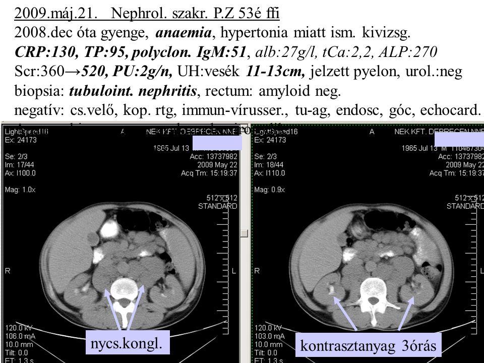 2009.máj.21. Nephrol. szakr. P.Z 53é ffi 2008.dec óta gyenge, anaemia, hypertonia miatt ism. kivizsg. CRP:130, TP:95, polyclon. IgM:51, alb:27g/l, tCa