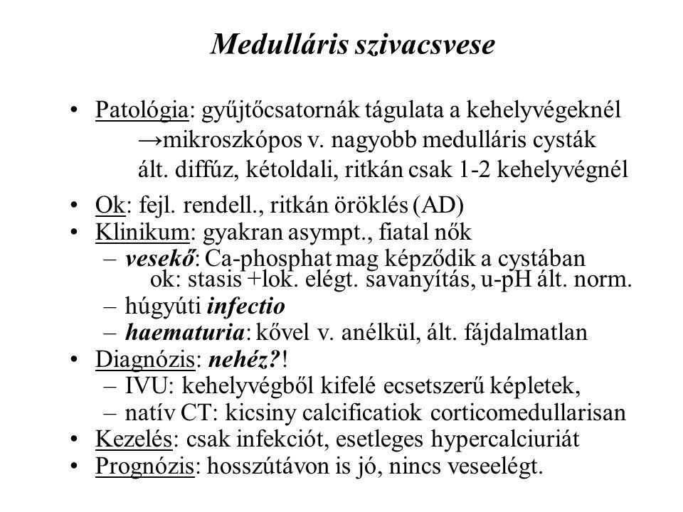 Medulláris szivacsvese Patológia: gyűjtőcsatornák tágulata a kehelyvégeknél →mikroszkópos v. nagyobb medulláris cysták ált. diffúz, kétoldali, ritkán