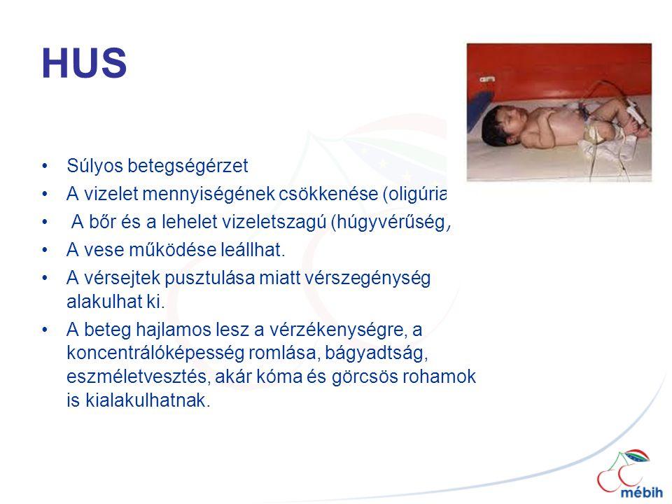 HUS Súlyos betegségérzet A vizelet mennyiségének csökkenése (oligúria) A bőr és a lehelet vizeletszagú (húgyvérűség) A vese működése leállhat.